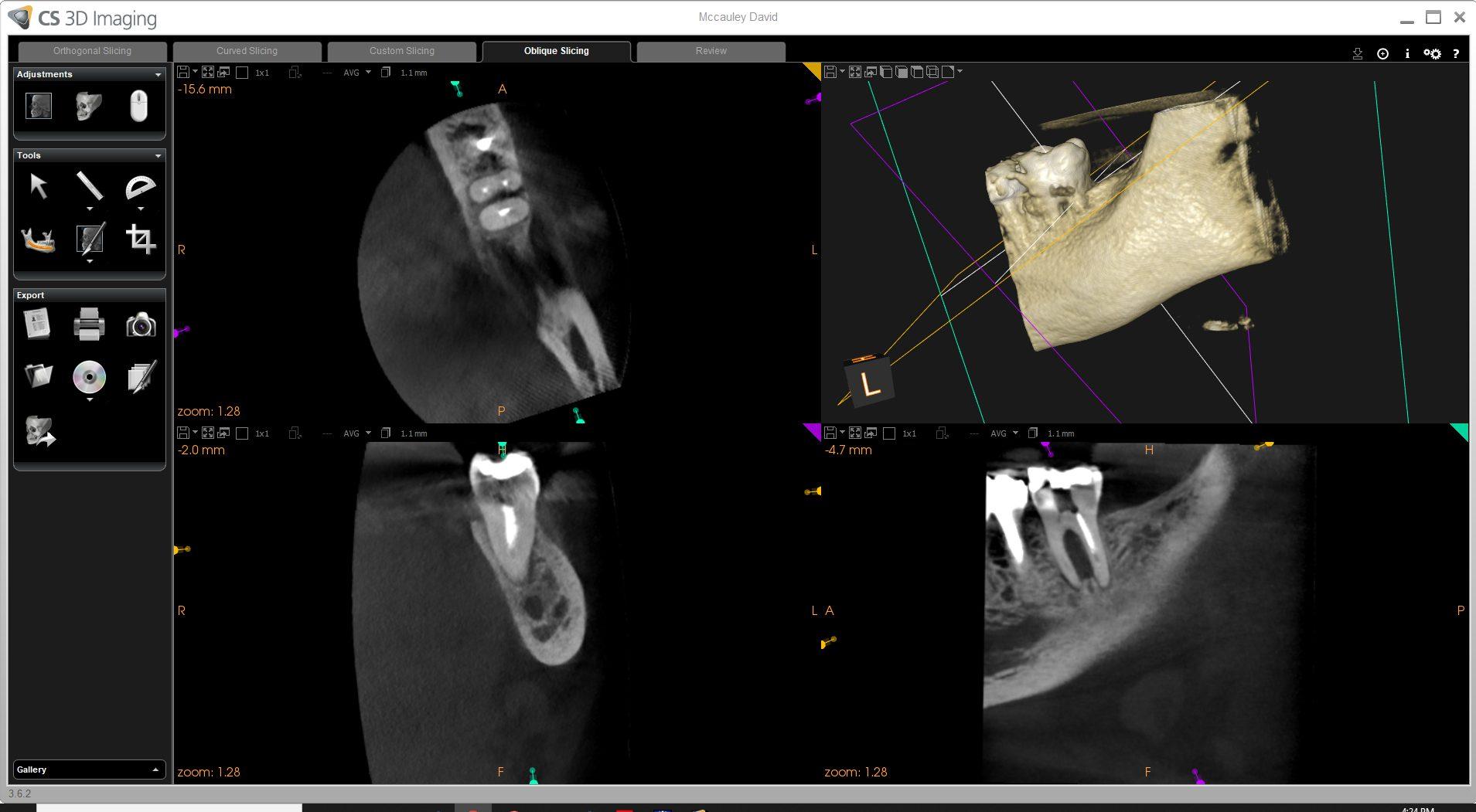 Parkside endodontics Conebeam technology